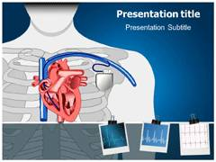 Arrhythmia PowerPoint template, Arrhythmia PowerPoint Themes