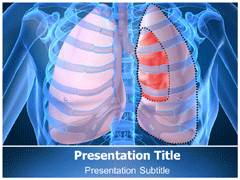Collapsed Lung PowerPoint Background