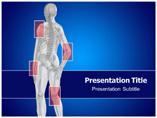 Tuberculosis Artheritis PowerPoint Slides
