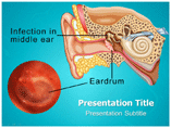 Otitis Media Animated Powerpoint Templates