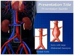 Abdominal Aneurysm PowerPoint Template, Abdominal Aneurysm PowerPoint Slide
