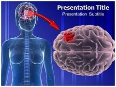 Glioma Symptoms PowerPoint Background