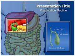 Bile Duct Cancer PowerPoint Slide