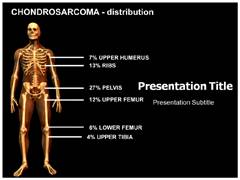 Chondrosarcoma Power Point Design