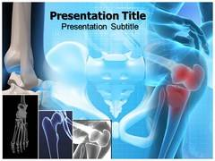 Bone Cancer PPT Backgrounds