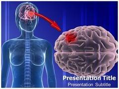 Glioma Treatment PowerPoint Slides