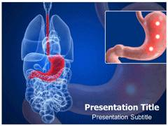 Gastric Ulcer Template PowerPoint
