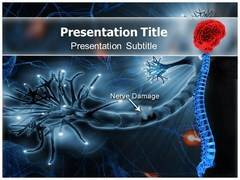 Causalgia Symptoms PowerPoint Backgrounds