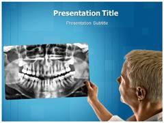 Macrognathia PowerPoint Slides