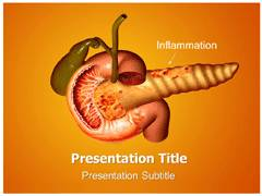 Pancreatitis Symptoms Template PowerPoint