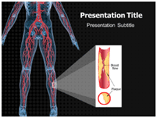 Peripheral Artery Disease PPT Templates, Peripheral Artery Disease Power Point Design Templates