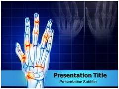 Arthritis Hands Template PowerPoint