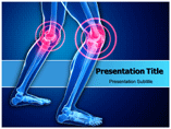 Orthopedic Knee Pain Template PowerPoint