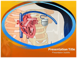 Pacemaker Surgery PowerPoint Templates, Pacemaker Surgery Power Point Background Templates
