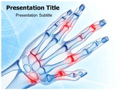 Hand Arthritis PowerPoint Slides