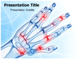 Hand Arthritis PowerPoint Slides