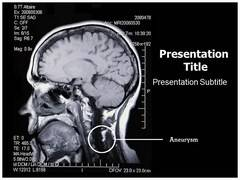 Brain Aneurysm PowerPoint Slide