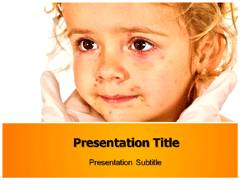 Chicken Pox Treatment PowerPoint Backgrounds