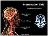 Encephalopathy PowerPoint Template