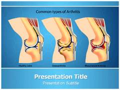 Rheumatoid Arthritis Symptoms PowerPoint Background