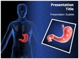 Ulcer Symptoms PowerPoint Theme