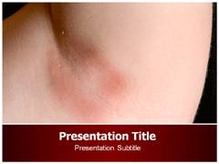 Yeast Infection Template PowerPoint