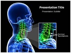Cervical Spondylosis PowerPoint Background