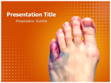 Toe Injuries Template PowerPoint