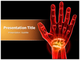 Carpal Tunnel Syndrome PowerPoint Backgrounds