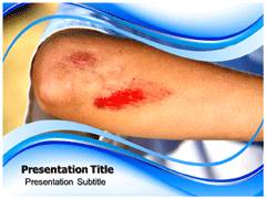 Skin Abrasions PowerPoint Slides