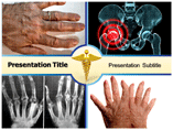 Finger Arthritis Template PowerPoint