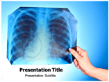 Atypical Pneumonitis PowerPoint Slides