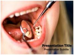 Dental Caries PowerPoint Slides