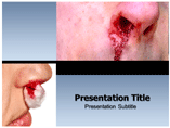 Epistaxis Template PowerPoint