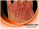 Skin Burn Template PowerPoint