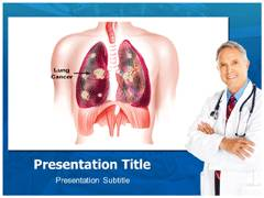 Lung Cancer PowerPoint Slides