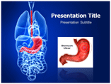 Stomach Ulcer Template PowerPoint