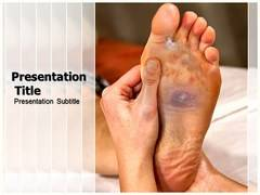 Tinea Pedis PowerPoint Slides