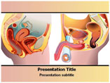 Prostate Cancer PowerPoint Slides