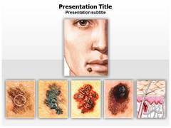 Skin Cancer Power Point Design